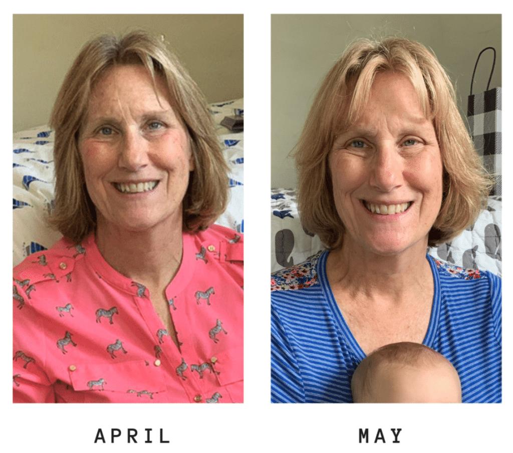 mamá antes y después